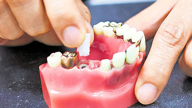 Dental implants Singapore cost