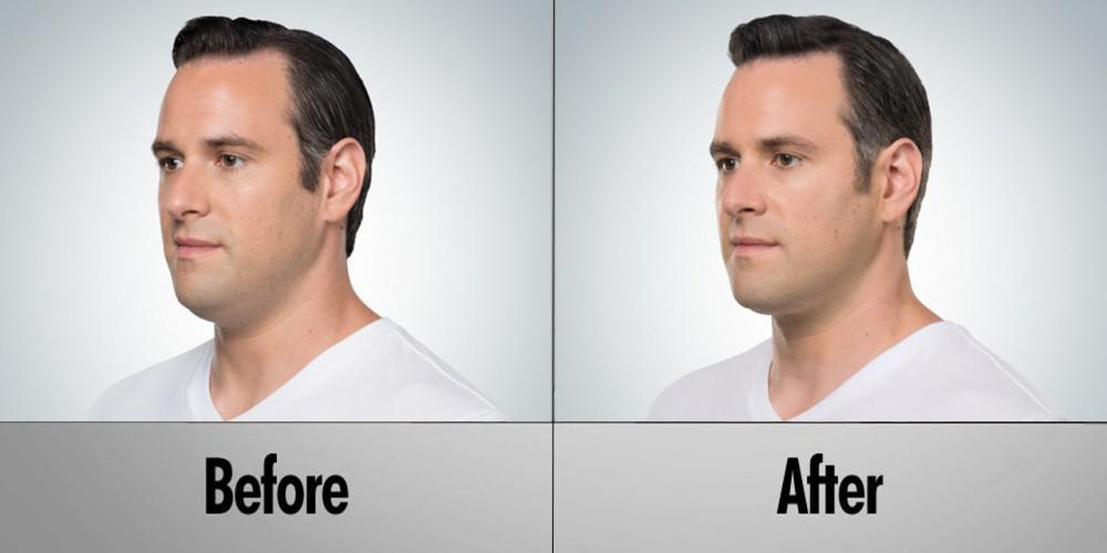 Time to keep your neck area with better looks