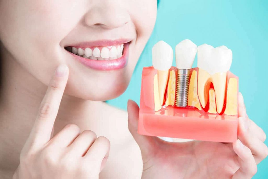 How dental profession helps in dealing and placement of implants?