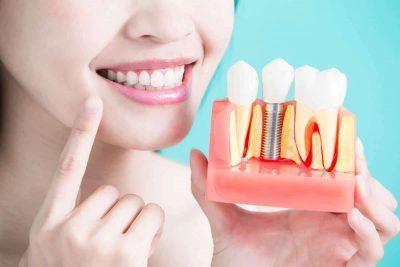Dental implants Singapore cost